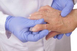 5 peores alimentos para la artritis
