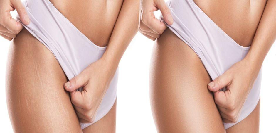 Las 5 mejores cremas para eliminar las estrías en tu piel sin gastar mucho dinero