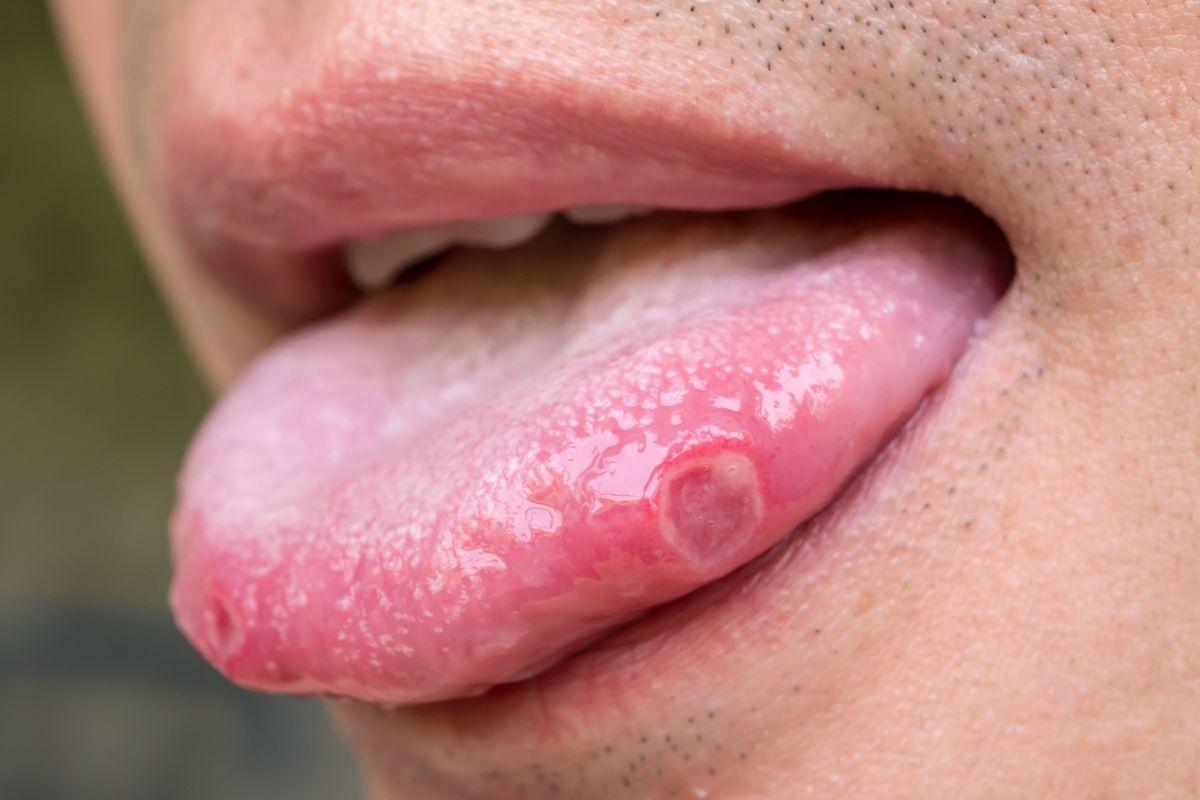 Por qué se generan los puntos blancos en la lengua