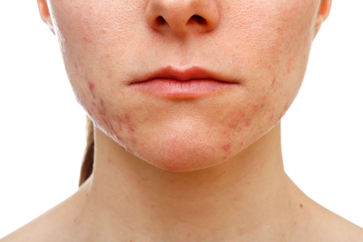 Por qué no hay que tocarse el rostro con acné