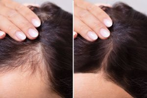 Pérdida de cabello por el Covid-19, más casos