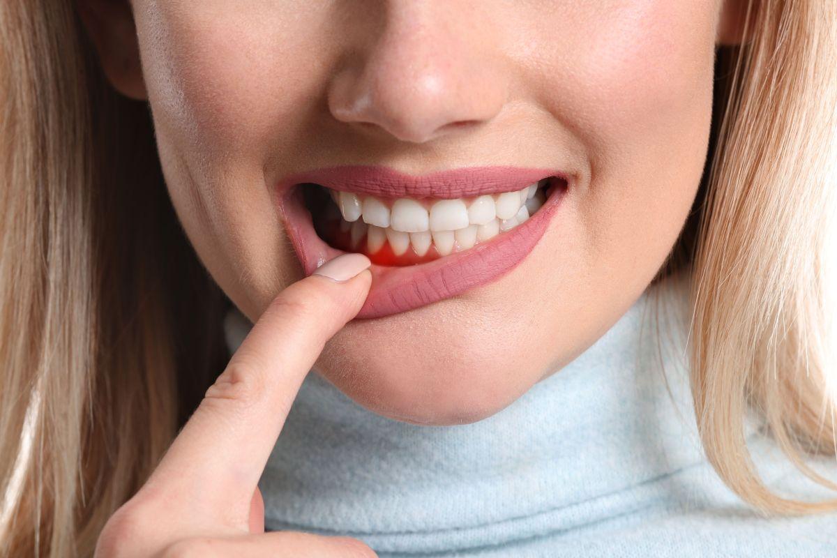 Si te sangran las encías, puedes tener deficiencia de una vitamina