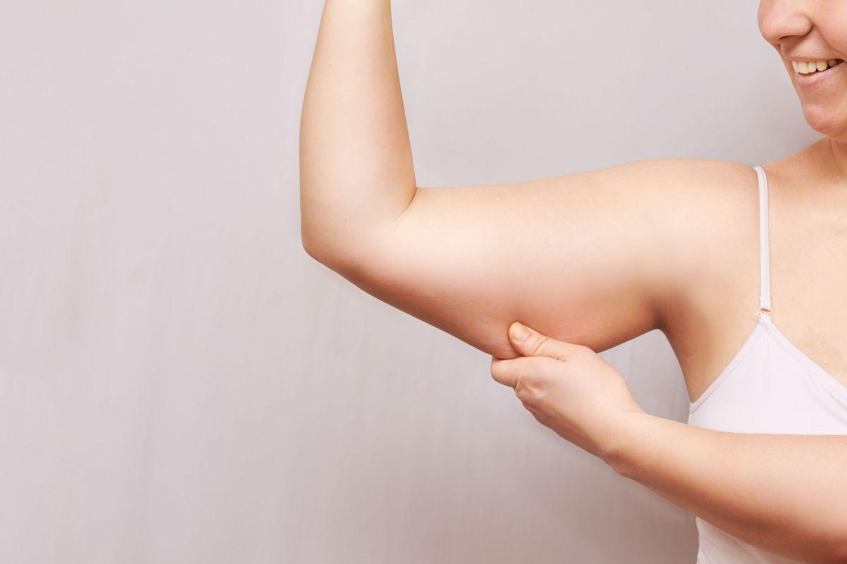 Cómo prevenir la celulitis en los brazos