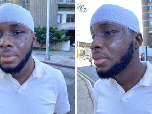 Pasajero histérico corta la cara a estudiante de medicina que laboraba como taxista en Nueva York