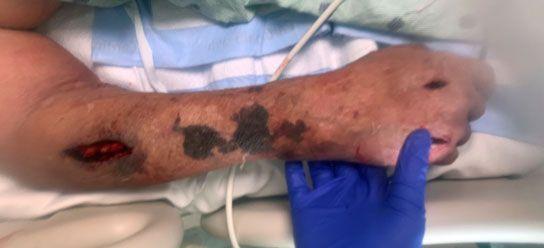 Médicos de Miami descubren un indicador para detectar el coronavirus: podría salvar vidas