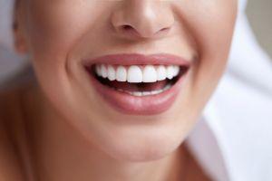 ¿Qué tan costosas son las carillas dentales?