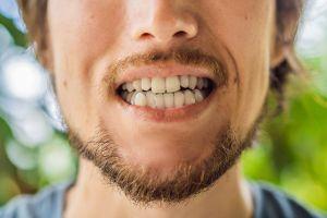 Los dientes rotos son otra consecuencia de la pandemia (y qué puedes hacer para evitarlo)