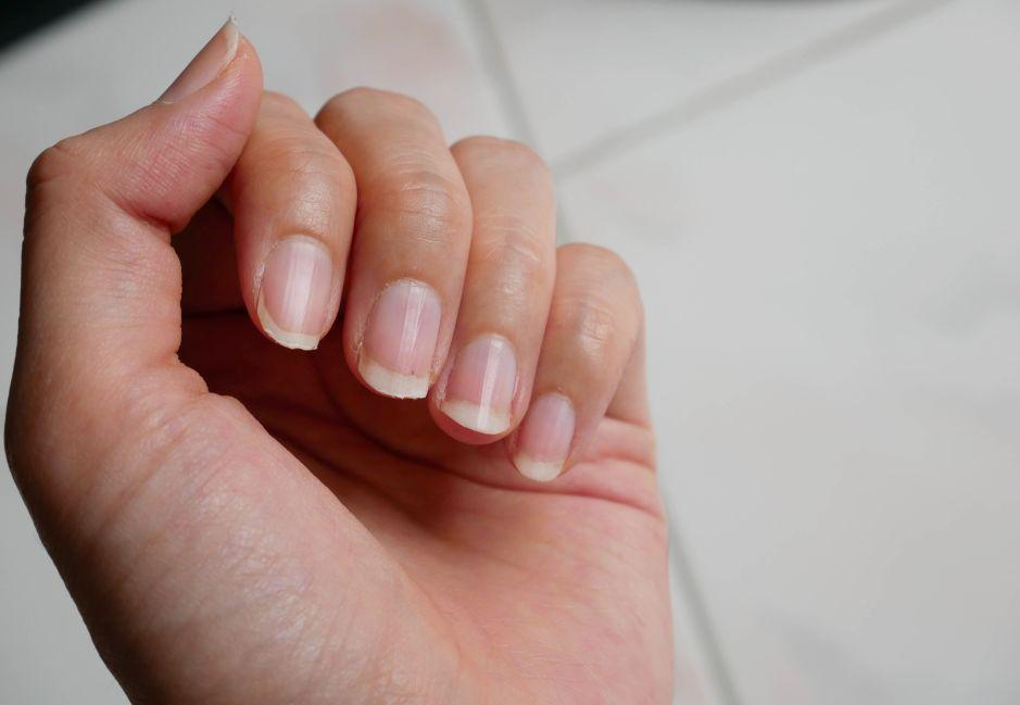 Descubre estos remedios caseros para tratar las uñas amarillas
