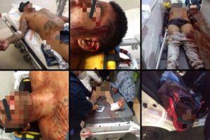 FOTOS: Matan a 6 y hieren a otros 6 tras balacera en capital de México