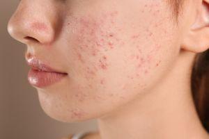 Cómo tratar correctamente los quistes sebáceos de acné en casa