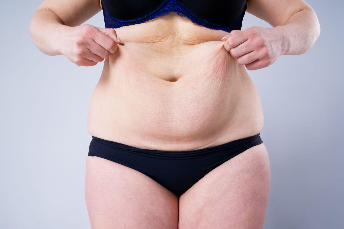 Qué hacer con el exceso de piel luego de perder mucho peso