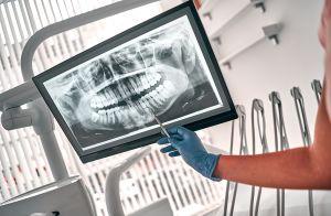 ¿Por qué limarse los dientes es una nueva moda peligrosa?