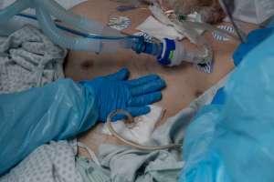 Estados Unidos supera los 400,000 muertos por coronavirus