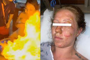 VIDEO: Jovencita estadounidense se quema el rostro con bebida en Cancún; culpa al mesero y pide justicia