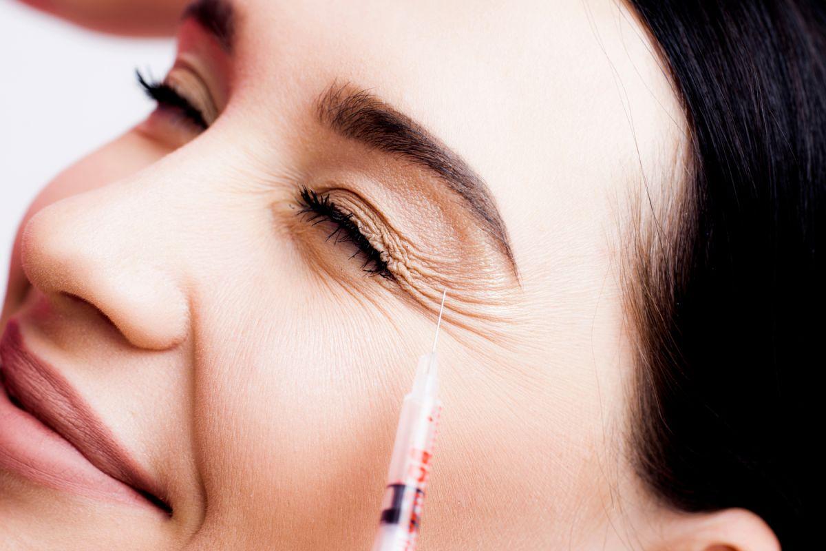 """¿Qué es una """"fiesta de Botox""""?"""
