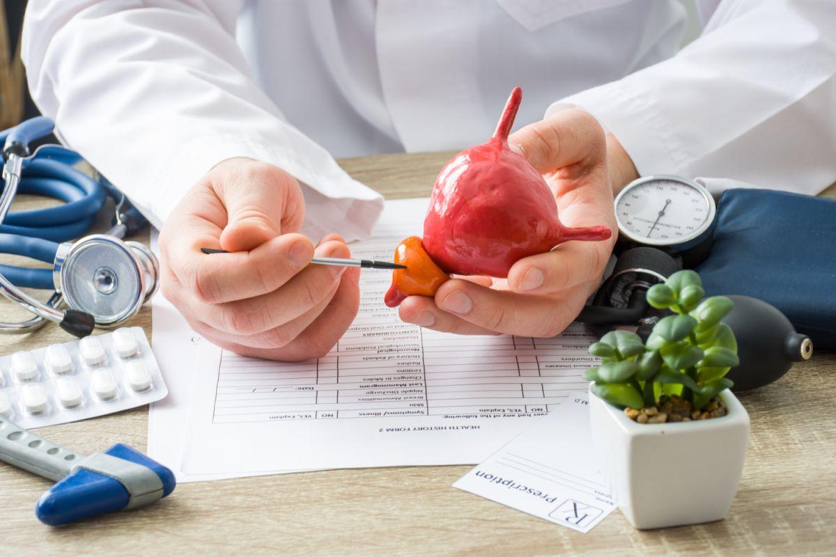 Es posible prevenir la metástasis durante el cáncer de próstata