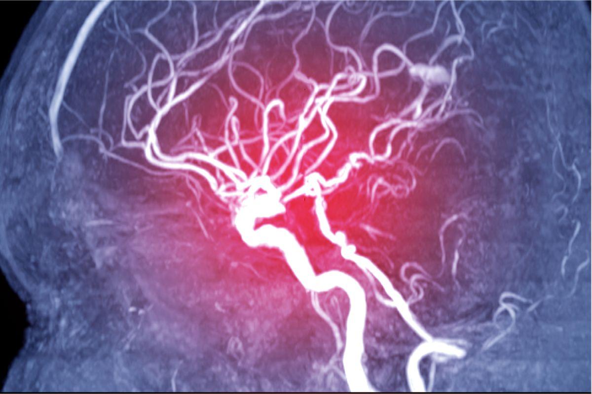 Qué relación tiene la trombosis venosa cerebral con el déficit de proteína