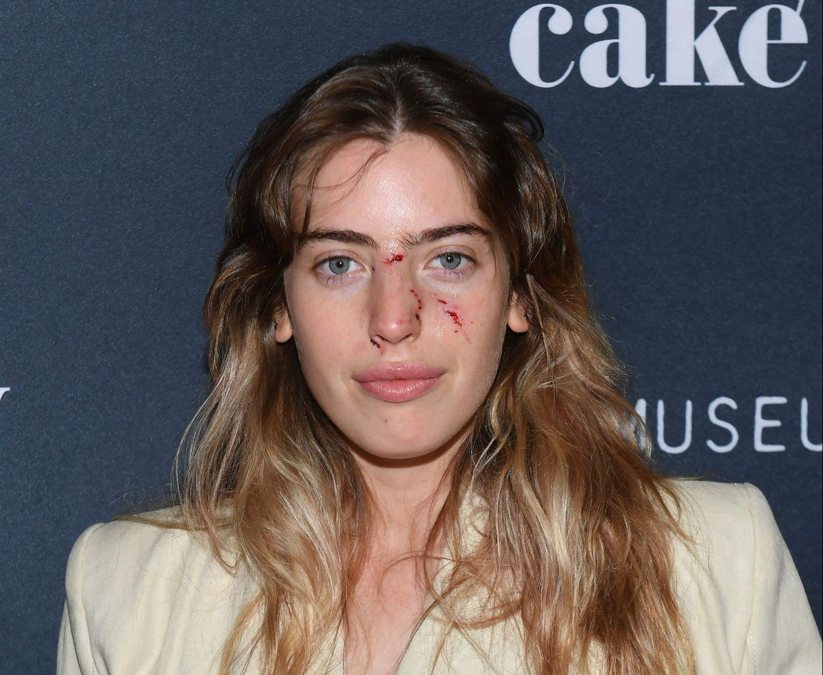 Clara McGregor, la hija mayor del actor escocés, regresó a la premiere después de pasar por urgencias donde recibió curaciones en el rostro.