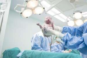 Bebé recién nacido recibe 13 puntos de sutura tras sufrir corte en el rostro durante cesárea