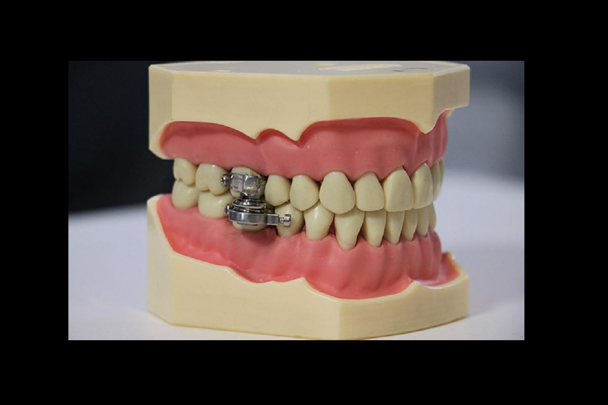 El DentalSlim se coloca en los dientes y sólo permite abrir la boca al mínimo.