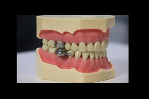 DentalSlim, el dispositivo para bajar de peso que funciona como un candado para los dientes
