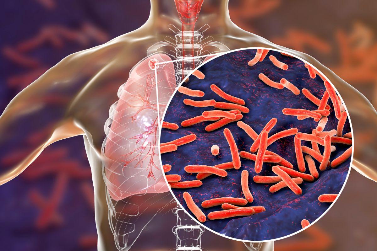 CDC y FDA investigan extraño brote de tuberculosis por posible medicamento contaminado