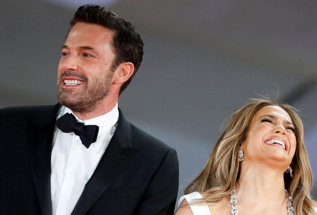 Ben Affleck sonrió tanto al lado de Jennifer López que un detalle en su boca quedó en evidencia .
