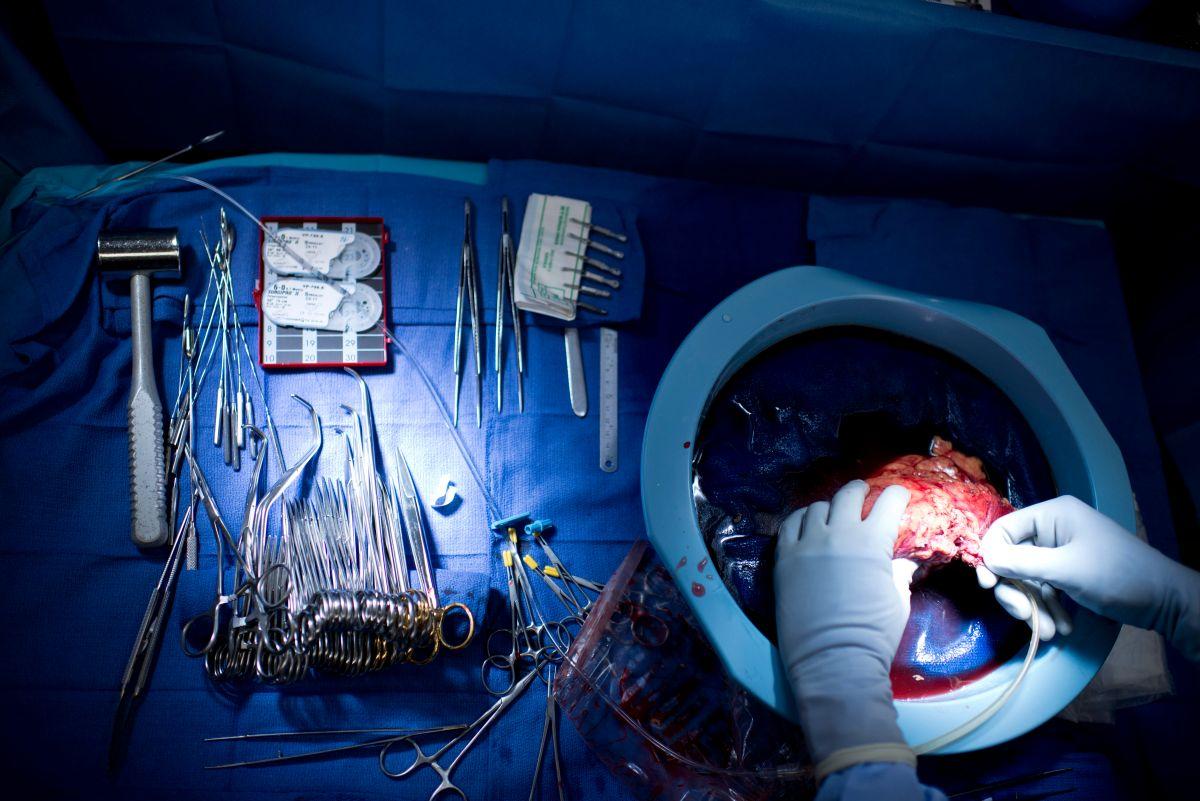 Un riñón recién removido del cuerpo de un donante en Johns Hopkins Hospital, en Baltimore, Maryland.